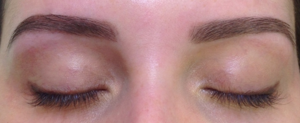 pigmentation-resultat-final