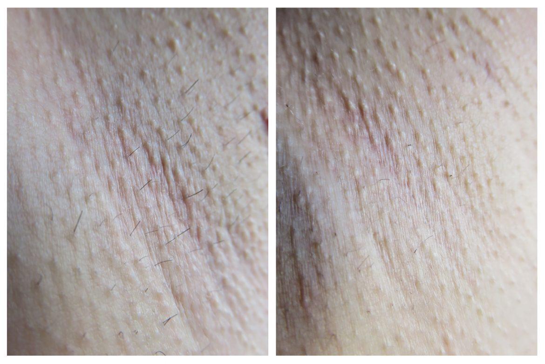 avant-apres-bilan-1-mois-epilation-depil-tech